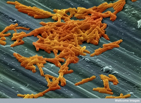 Clostridium difficile bacteria. Photo: Francisco Bengoa/Flickr